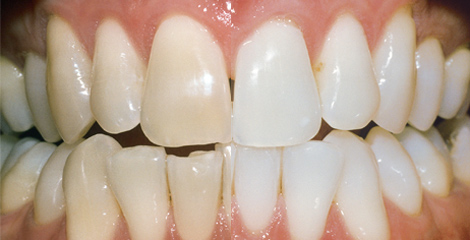 Zahnarzt Plauen | Praxis Kühn - Bleaching | Vorher-Nachher Bsp. 1