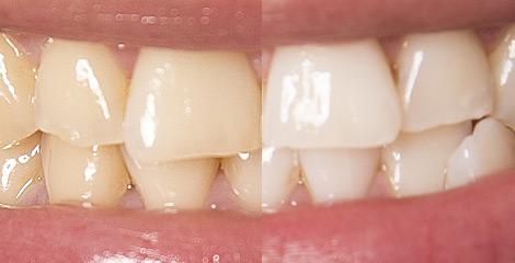 Zahnarzt Plauen | Praxis Kühn - Bleaching | Vorher-Nachher Bsp. 2
